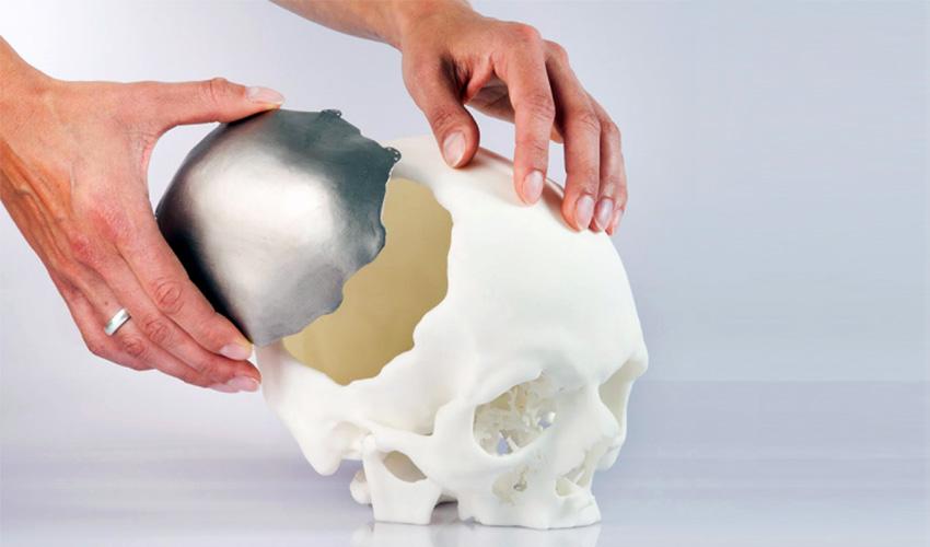 3D printed titanium implants